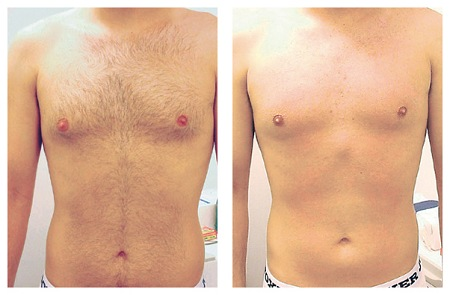 depilacion-candela-pecho-y-abdomen.jpg